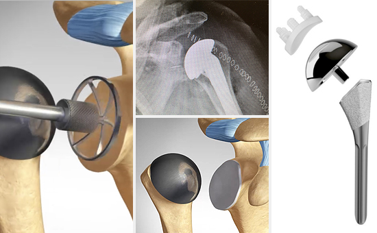 Anatomic Total Shoulder Replacement
